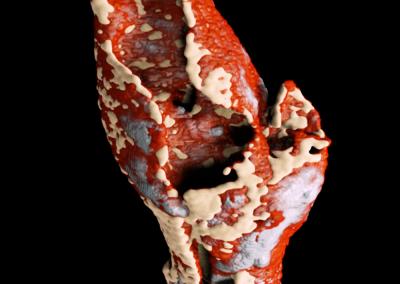 Atheroclerotic plaque